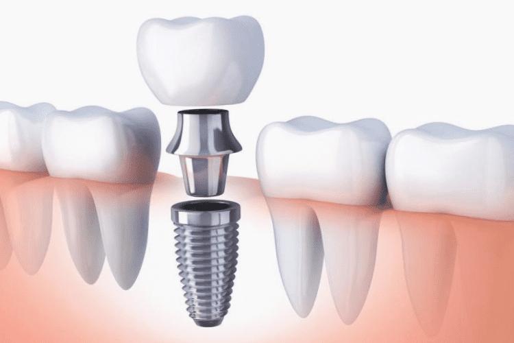 Clínicas de implantes dentário